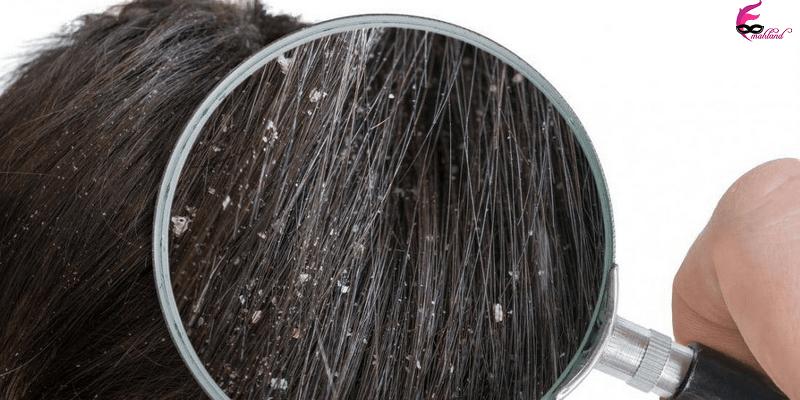 درمان سریع شوره سر سخت
